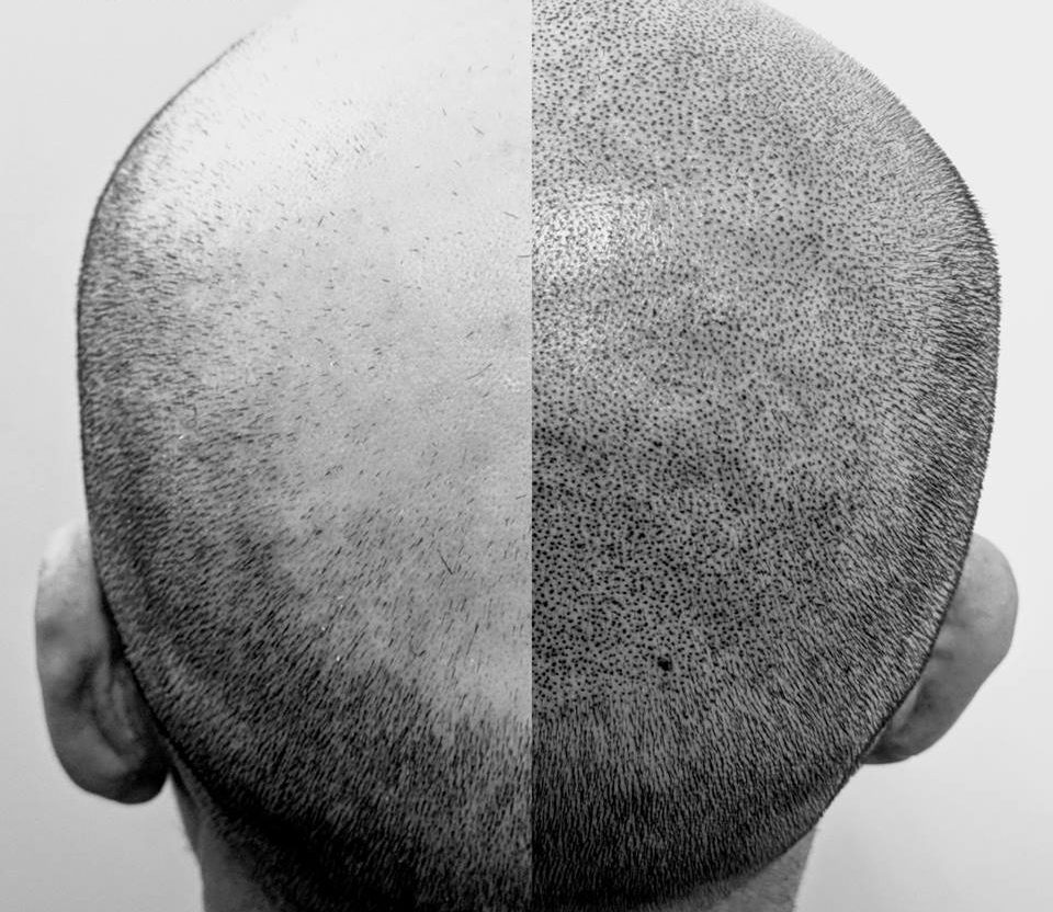 effects of scalp pigmentation treatment