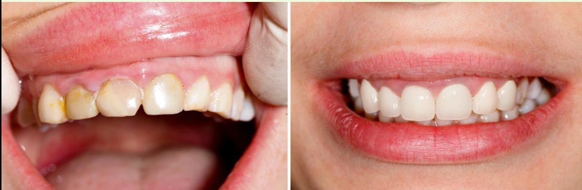 dental near me